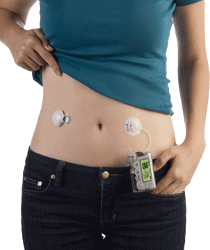What is Glucose Monitoring?