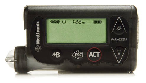 Paradigm Revel Insulin Pump