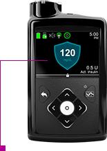 MiniMed 530G Insulin Pump | Diabetes Pump System With