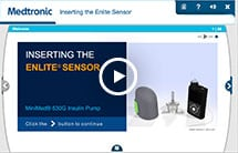 Inserting the enlite sensor