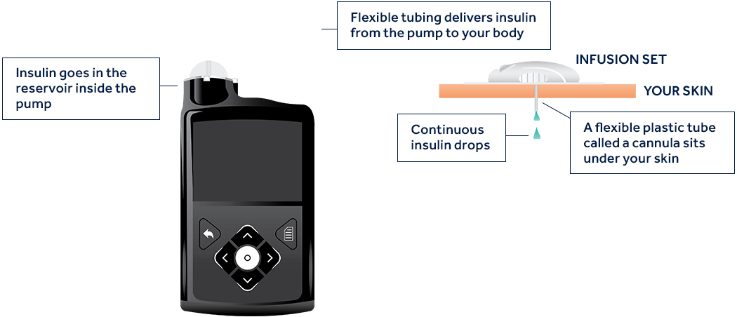 How does an insulin pump work?